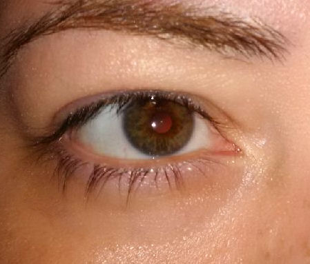 after-eye-gel2