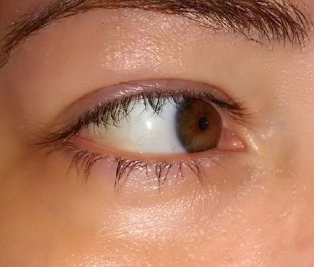 before-eye-gel